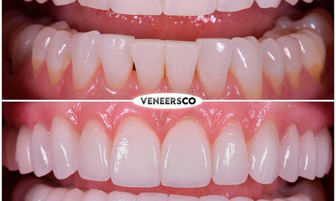 before and after veneers colombia